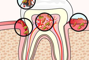 Tooth Section with Damage and Germs
